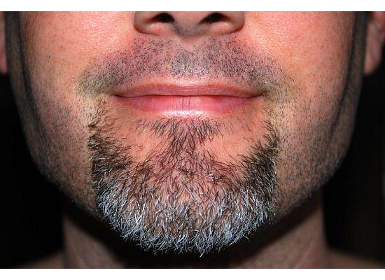 Rally beard